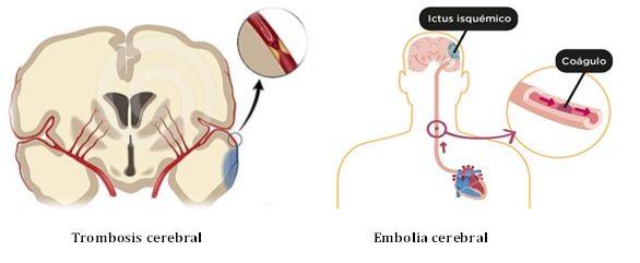 De empeorado periférica dolor neuropatía