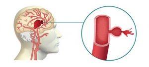 hemorragia-cerebral-ictus